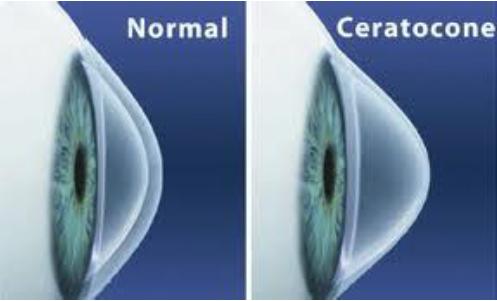 Ceratocone é uma doença ocular que afeta a córnea